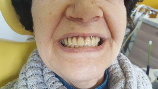 Smile after treatment with the new prosthesis