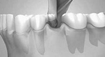 Edentatie dentara