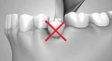 Implant plasat gresit