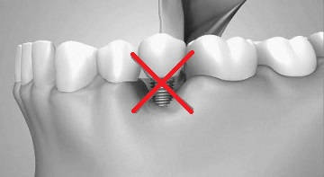 Implant instabil