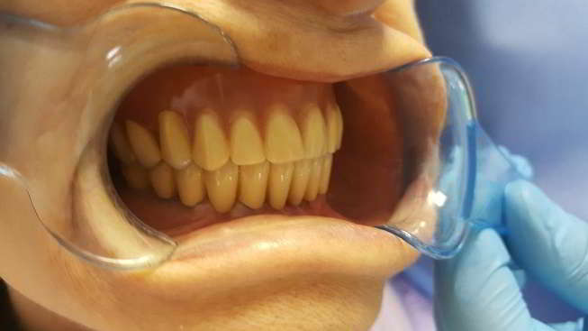 In the type of tests with new teeth