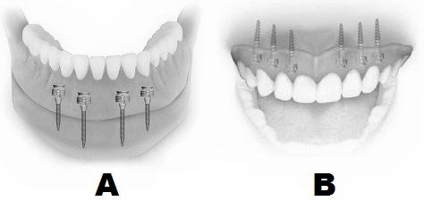 Insertion of mini-implants for mobile prosthesis