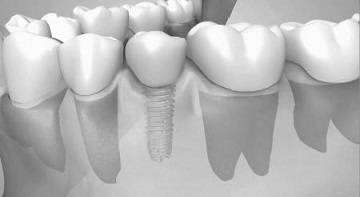 Dental implant insertion