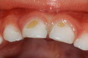 Yellow spots of baby teeth