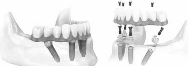 Pozitia implanturilor All on 4