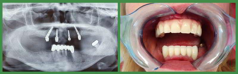 Radiografie si situatie dentara dupa