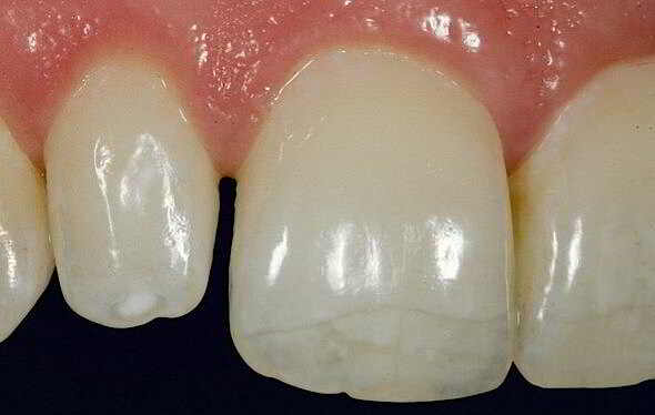 Dental fissure of the front tooth